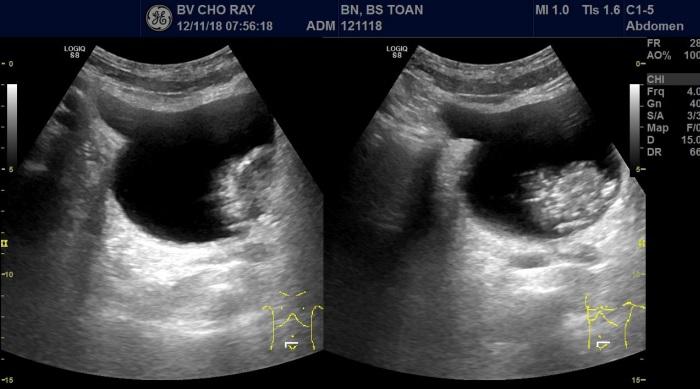 [VSUM2019] Vai trò của siêu âm trong chẩn đoán bướu bàng quang
