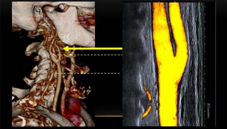 [VSUM2019] Sử dụng siêu âm đưa ra chỉ định điều trị hẹp động mạch cảnh trong