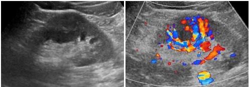 [VSUM2019] Vai trò của siêu âm trong khảo sát các khối bất thường ở thận – GS. Seung Hyup KIM Bộ môn Chẩn đoán hình ảnh Bệnh viện Đại học Quốc gia Seoul Seoul, Hàn Quốc