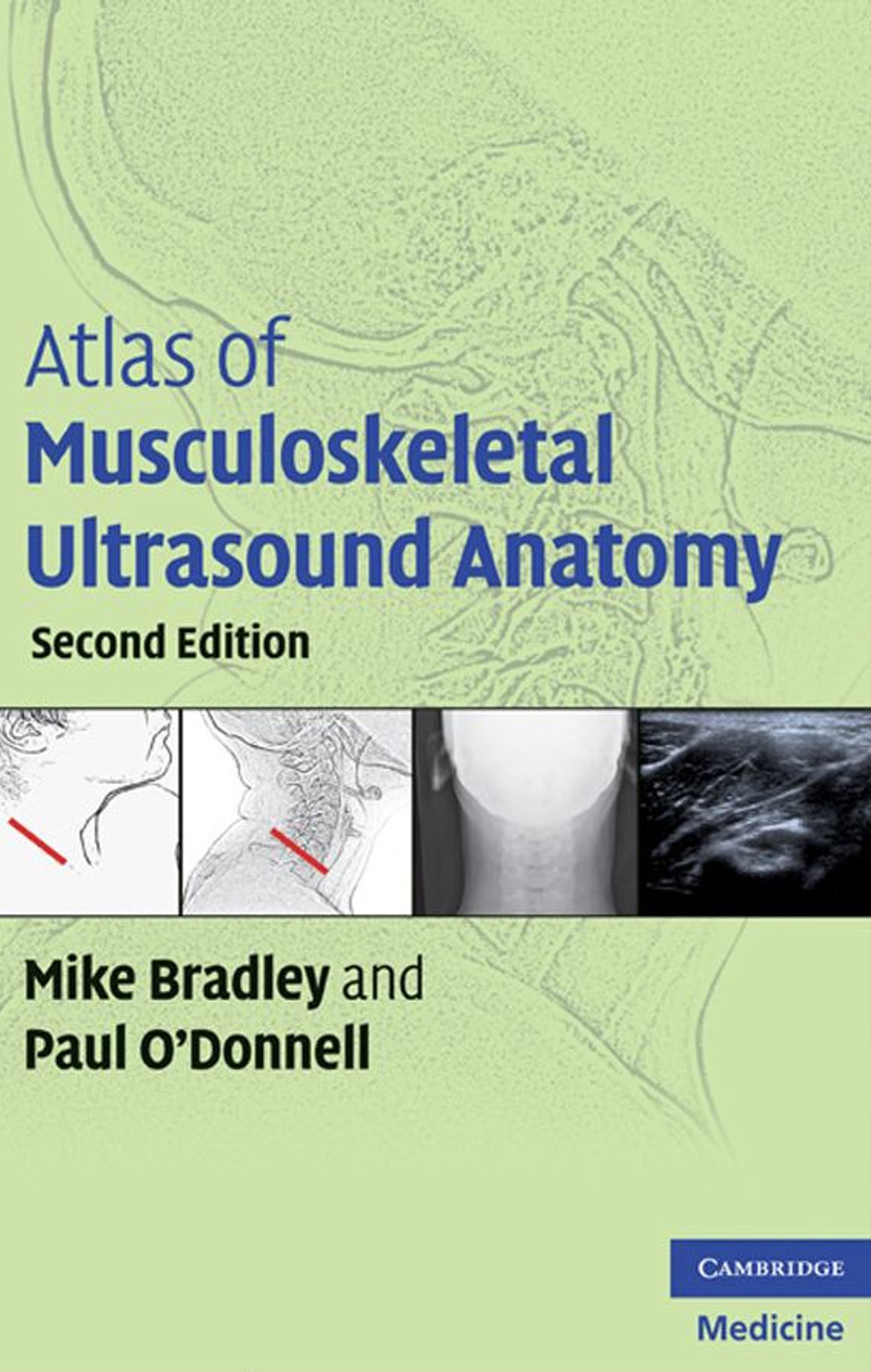 [PDF] Atlas of Musculoskeletal Ultrasound Anatomy