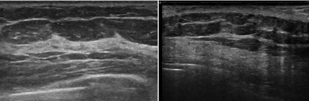 [VSUM2019] Siêu âm thành ngực phát hiện tái phát và di căn sau mổ K vú