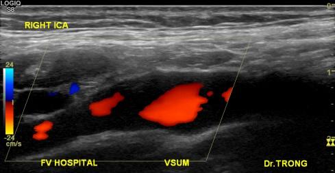 [VSUM2019] Cạm bẫy trong siêu âm Doppler màu động mạch cảnh – đốt sống