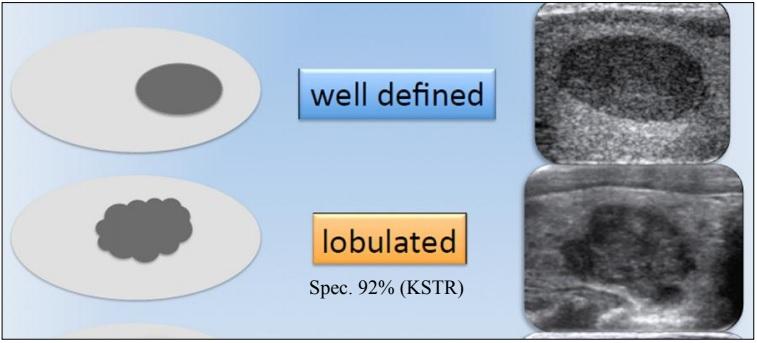 [VSUM2019] Tổng quan về phân loại TI-RADS trong siêu âm tuyến giáp