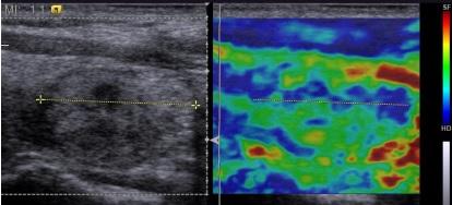 Ứng dụng siêu âm đàn hồi trong bệnh lý tuyến giáp