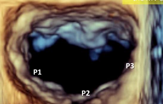 [VSUM2019] Siêu âm tim 3D trong đánh giá và can thiệp các bệnh van tim