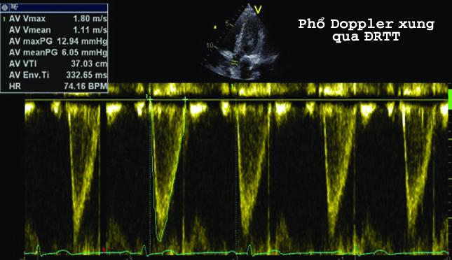 Doppler xung đường ra thất trái siêu âm tim