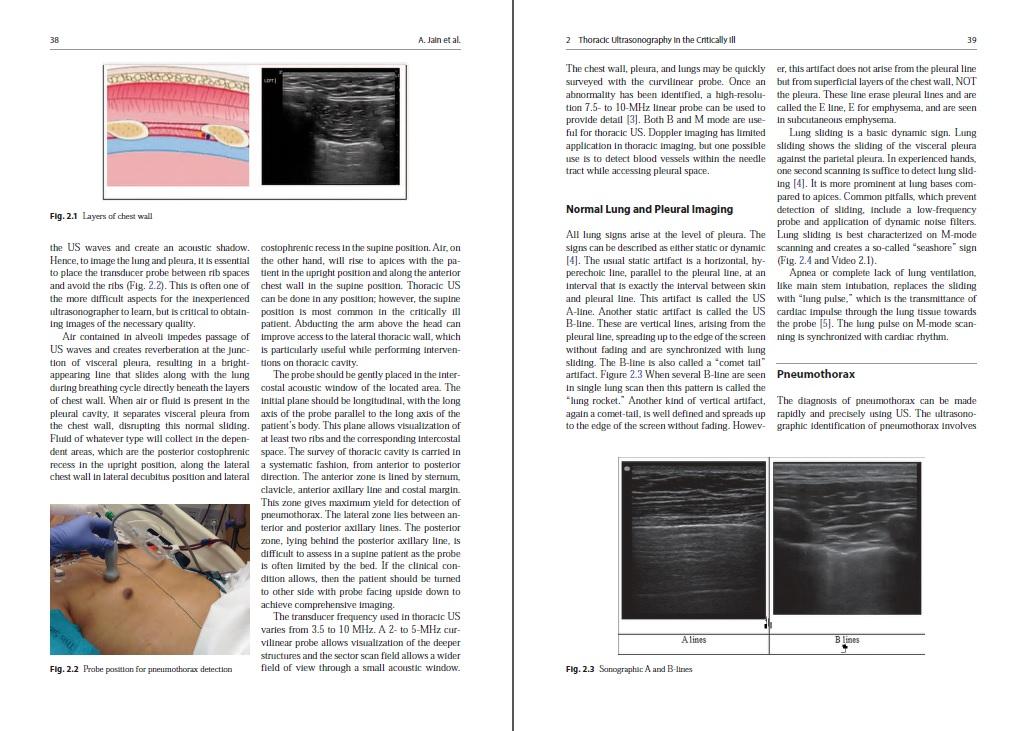 siêu âm hồi sức cấp cứu