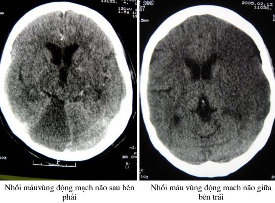 Cắt lớp vi tính sọ não – phần 1