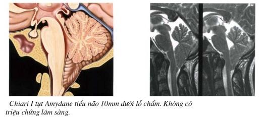 Cắt lớp vi tính sọ não – phần 2