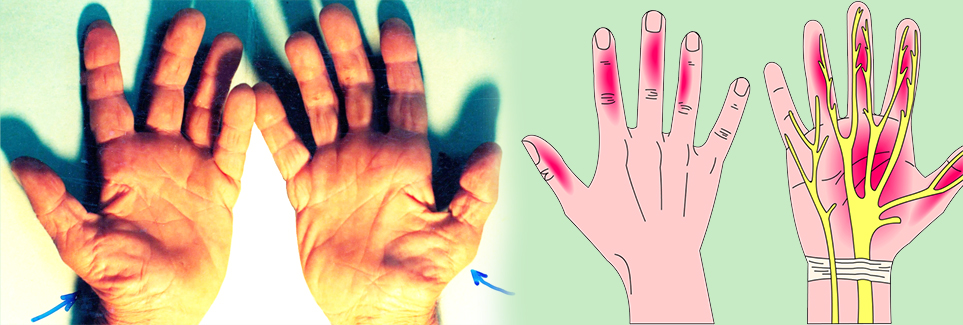 Hội chứng ống cổ tay: đau hoặc rối loạn cảm giác ở tay xin đừng chủ quan