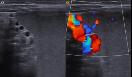 [VSUM2019] Huyết tắc tĩnh mạch lách được chẩn đoán bằng siêu âm Doppler màu và phẫu thuật bắc cầu lách – mạc treo