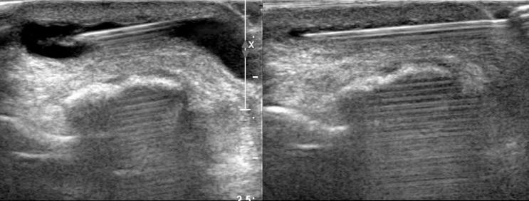 [VSUM2019] Siêu âm can thiệp trong hệ cơ xương khớp