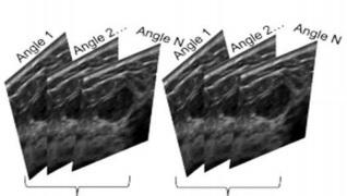 [VSUM2019] So sánh Ultrafast Doppler và Doppler thường quy nhân một trường hợp rò động tĩnh mạch thận