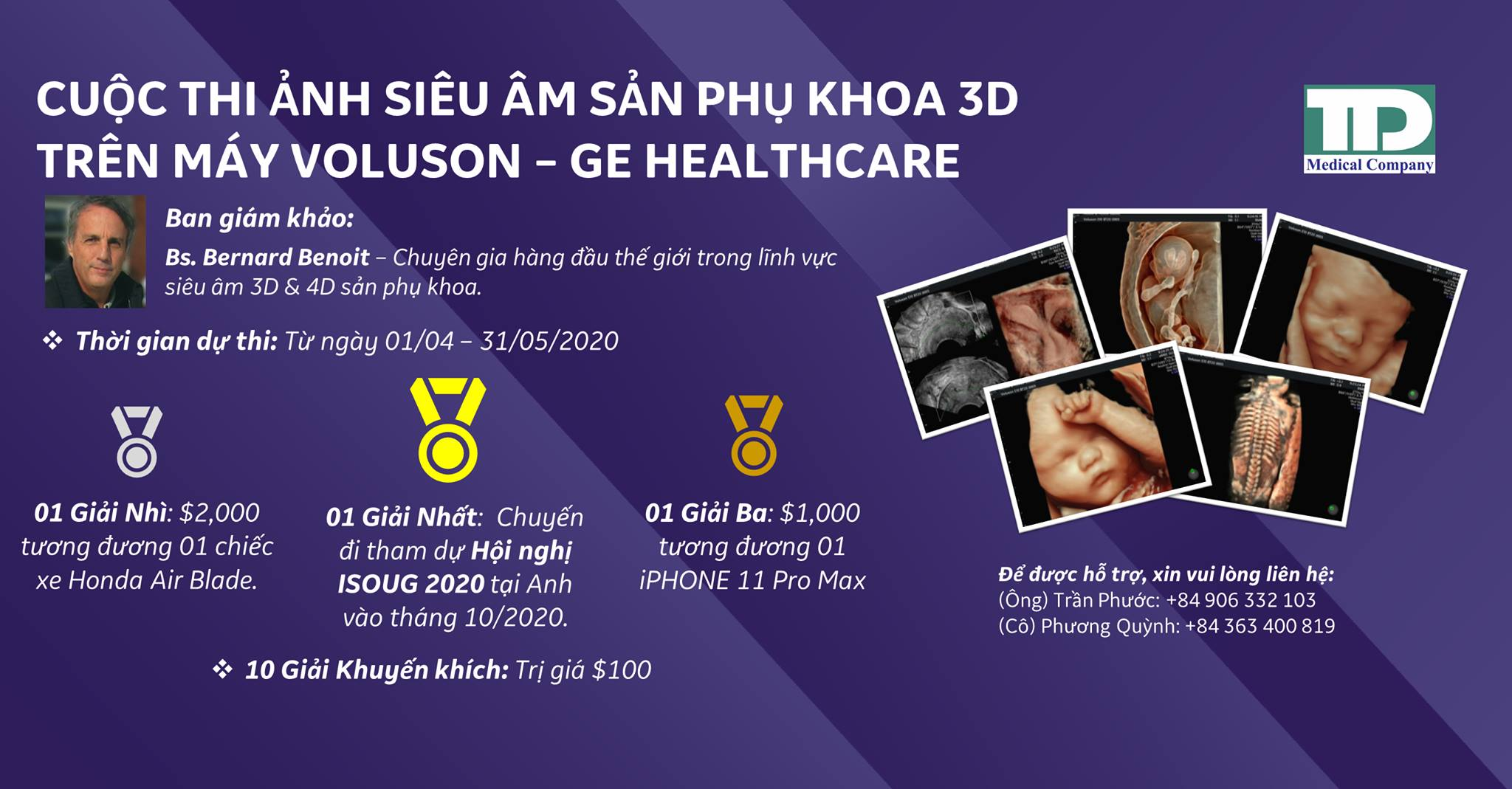 Hình ảnh siêu âm thai 3D GE Voluson