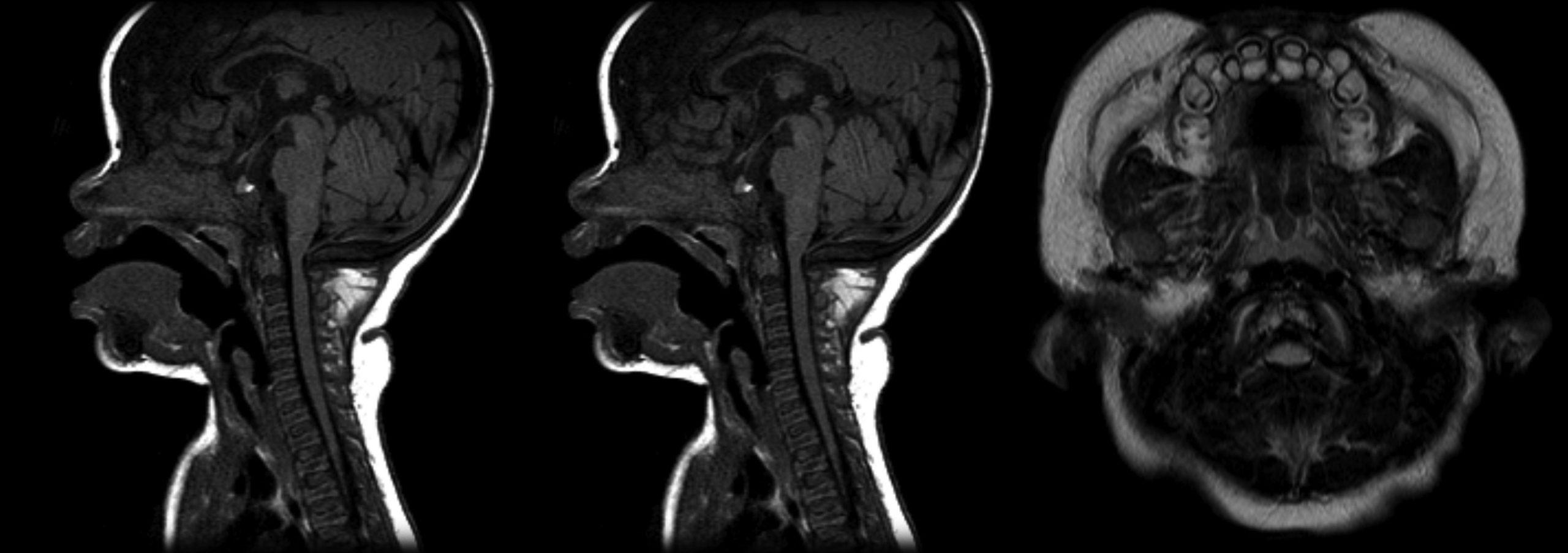 Hội chứng lùn Achondroplasia