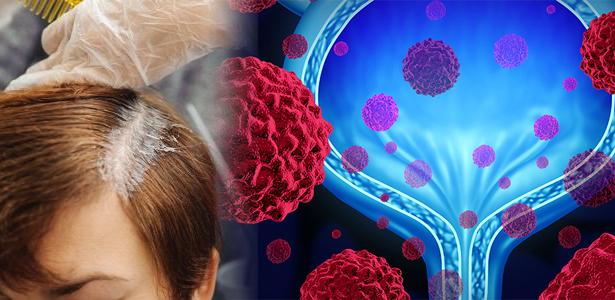 Thuốc nhuộm tóc gây ung thư bàng quang