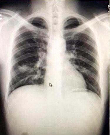 Hình ảnh Bệnh nhân T.C.P. 29 tuổi viêm nền phổi phải do 2019-nCoV