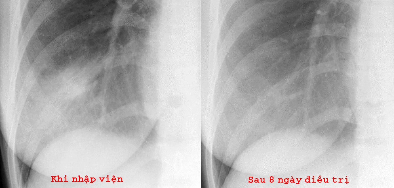 Hình ảnh Xquang quy ước của bệnh nhân SARS