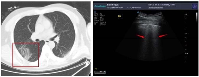 Tìm hiểu hình ảnh siêu âm phổi trên bệnh nhân nhiễm COVID-19