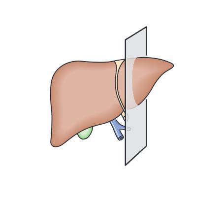 đường quét siêu âm gan