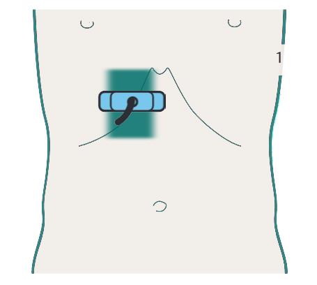 đường quét siêu âm gan 2