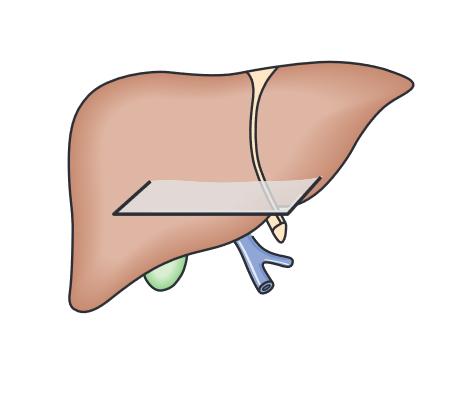 Các đường quét tiêu chuẩn siêu âm gan mật