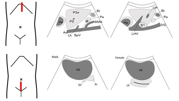 Các lát cắt tiêu chuẩn siêu âm bụng