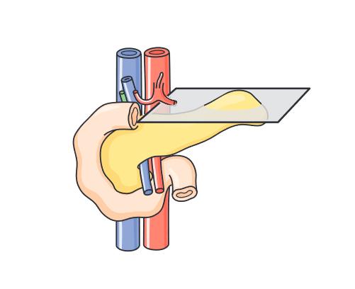 Lát cắt tiêu chuẩn siêu âm tụy