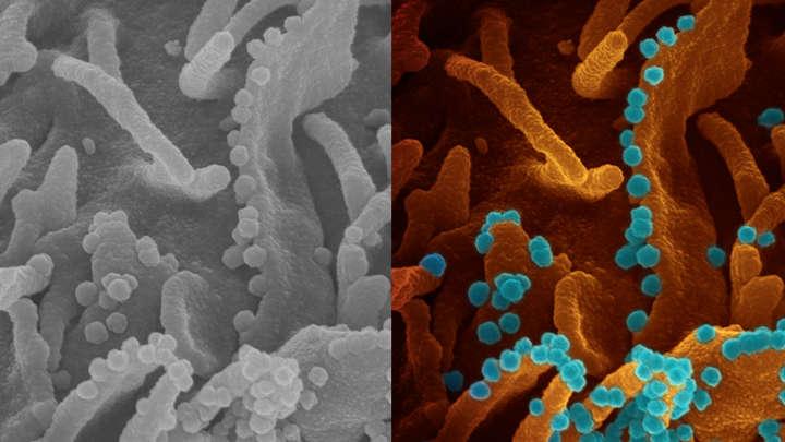 Tìm thấy kháng thể người có thể ngăn chặn COVID-19 lây nhiễm