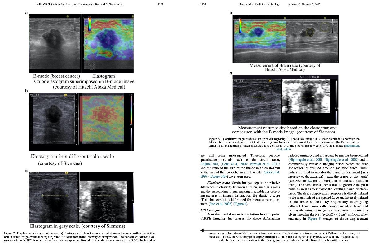 Tài liệu hướng dẫn và khuyến cáo của WFUMB về siêu âm đàn hồi mô trong ứng dụng lâm sàng