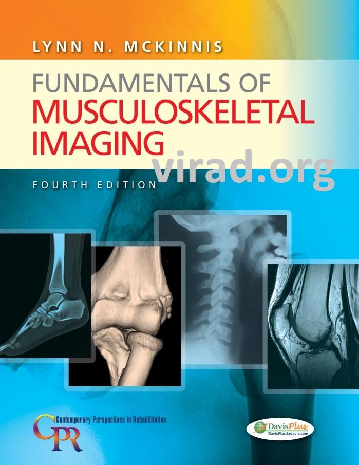 Fundamentals of Musculoskeletal Imaging – Fourth Edition – by Lynn N. Mckinnis