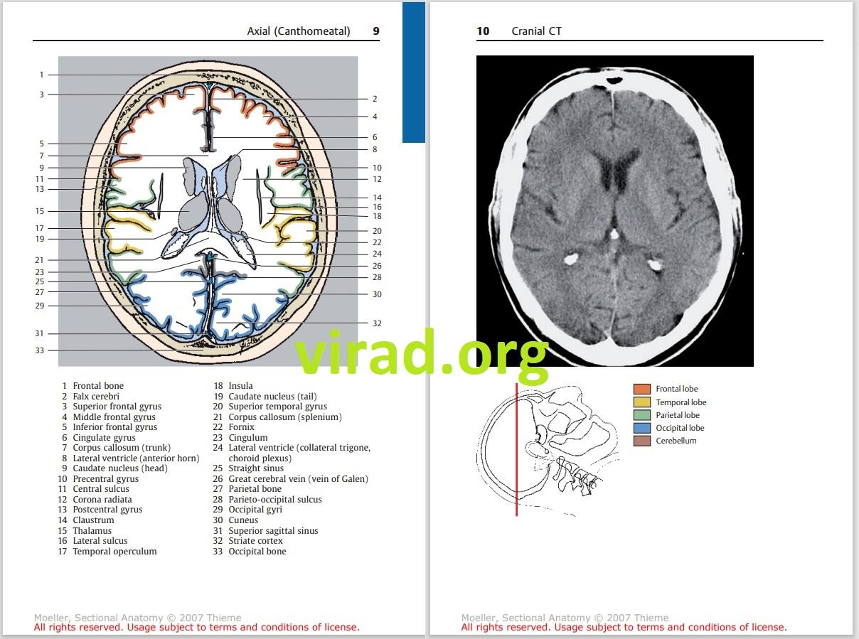 Pocket Atlas of Sectional Anatomy