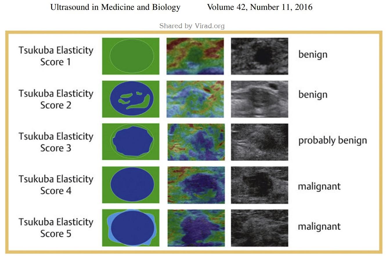 Quy trình siêu âm đàn hồi mô tuyến vú Strain Elastography